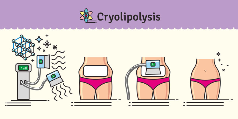 cryolipolysis infographic